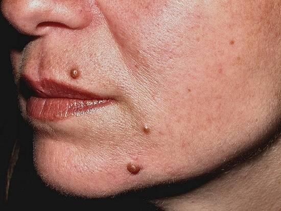 intralesional corticosteroids for alopecia areata